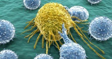 """Tumori, i """"messaggi"""" delle cellule sono intercettati da nanoparticelle d'oro."""