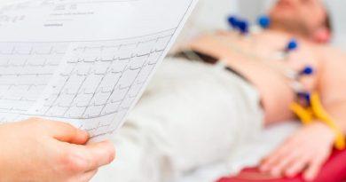 Fibrillazione atriale: benefici maggiori con soli anticoagulanti orali dopo impianto valvolare aortico transcatetere