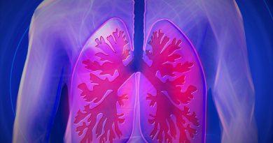 Il 30% dei guariti Covid (anche giovani) avrà danni permanenti ai polmoni