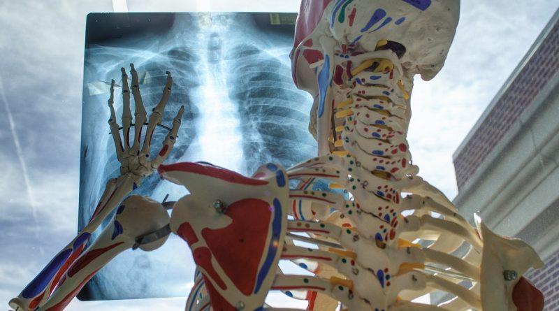 Disturbi muscolo-scheletrici sul lavoro: Catania protagonista con il progetto europeo Prevent4Work