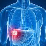 Epatite C: urge ripartire con screening e trattamenti dopo i rallentamenti dovuti alla pandemia. Preoccupanti i dati sulla cirrosi
