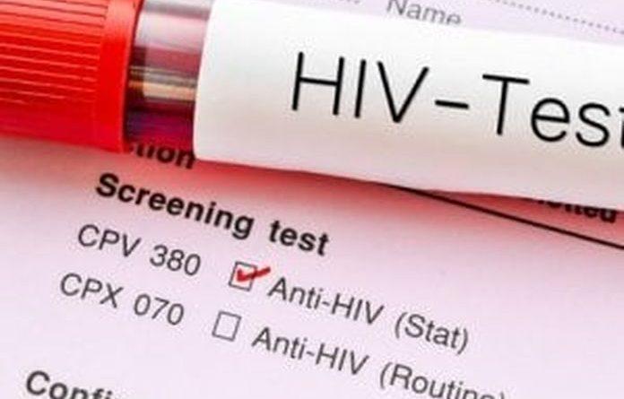 """COVID19 e HIV: nessun collegamento terapeutico tra le due """"Pandemie gemelle"""", né per contagi né per conseguenze. Test in diminuzione, ma aumenta la telemedicina"""