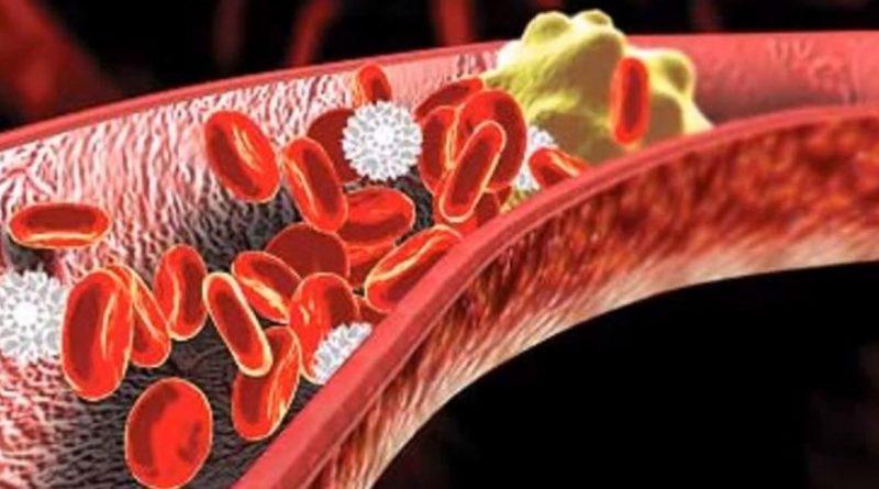 Colesterolo cattivo, prima causa di infarto miocardico
