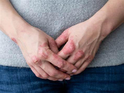 Caporali: artrite psoriasica spesso curata per la vita